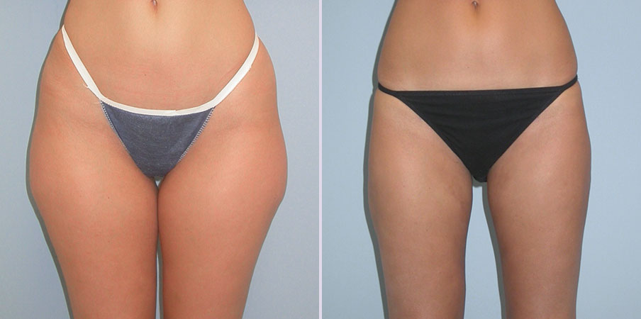 liposuction thighs and flanks