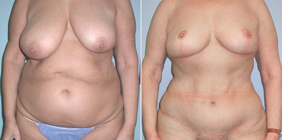 abdominoplasty plastic surgery