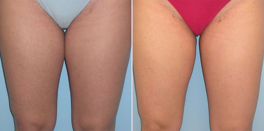 liposuction plastic surgery example