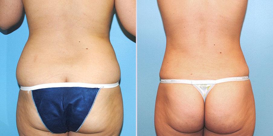 liposuction surgery back