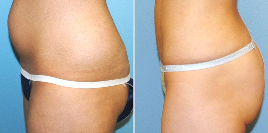 liposuction surgery left