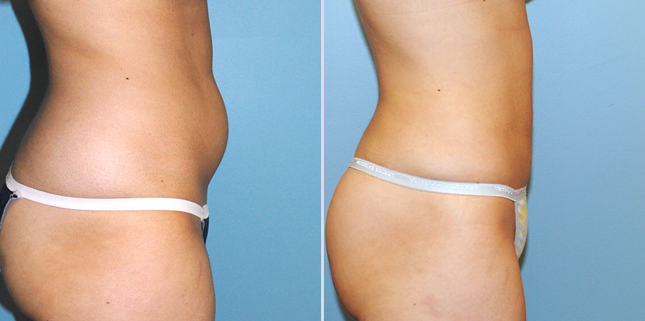 liposuction surgery right