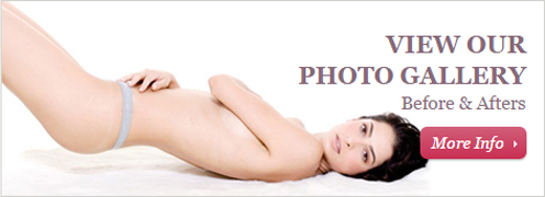 Plastic Surgery Photo Gallery