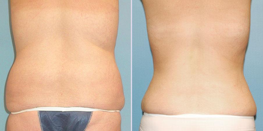 liposuction love handles