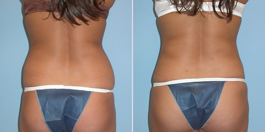 liposuction stomach hips flank back