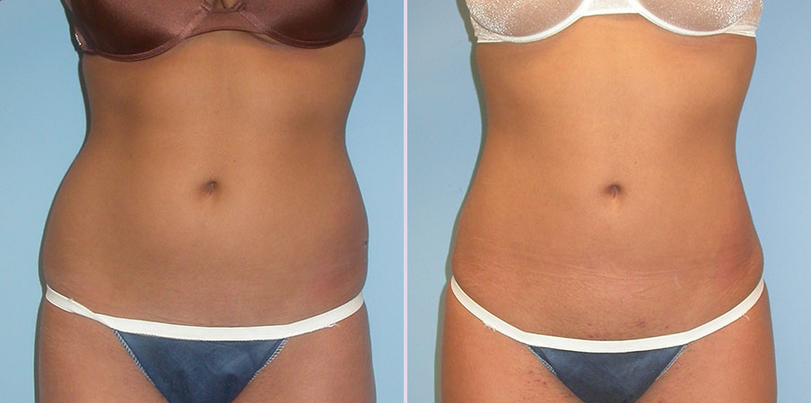 liposuction stomach hips and flanks front