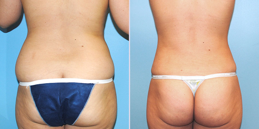 liposuction surgery back