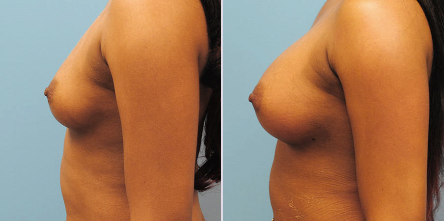 breast-augmentation-6side