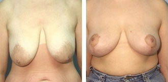 breast_lift1a
