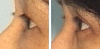 eyelids1a