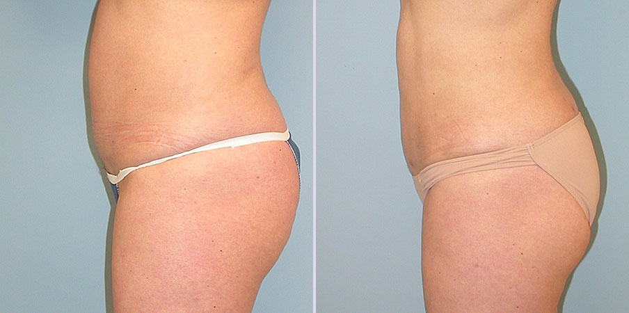 liposuction plastic surgery before and after